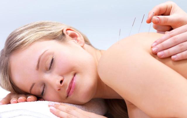 Tüp Bebek Tedavisinde Akupunktur